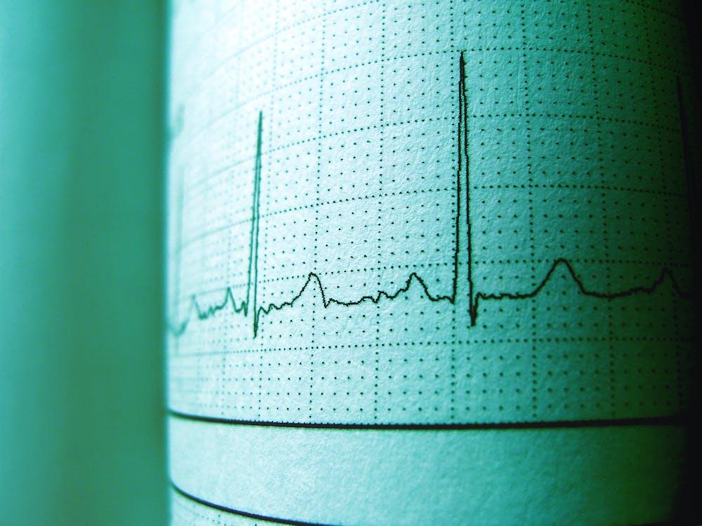 analiză, cardiograma, diagnostic