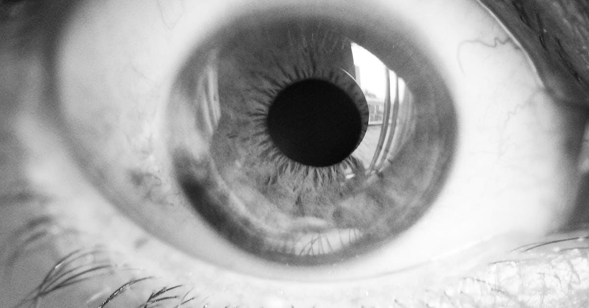 фото глаз лунатика это специалист, занимающийся