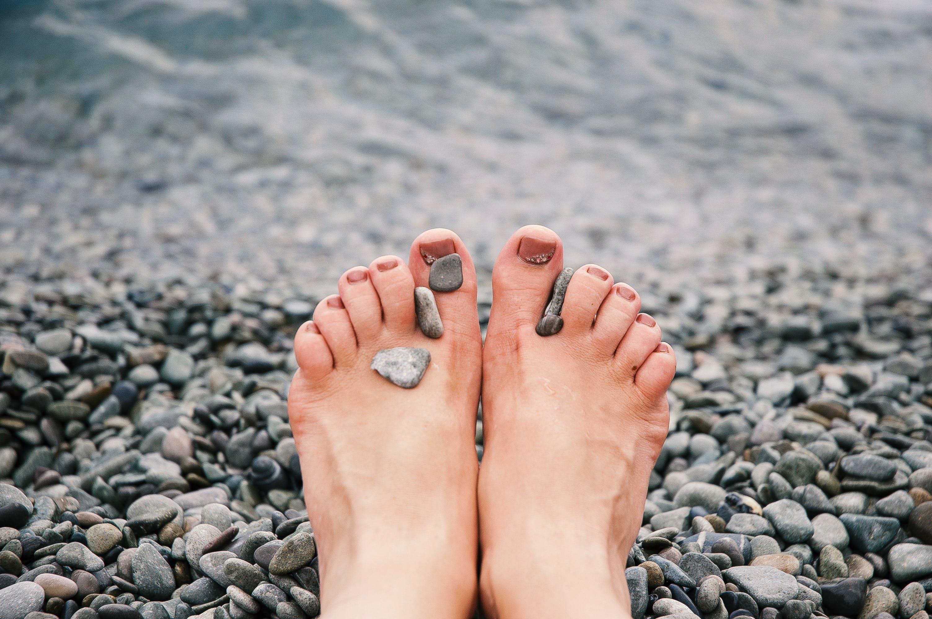 Stones on Woman's Feet
