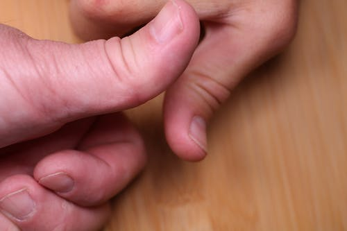 Free stock photo of hands, thumbs, thumbs up