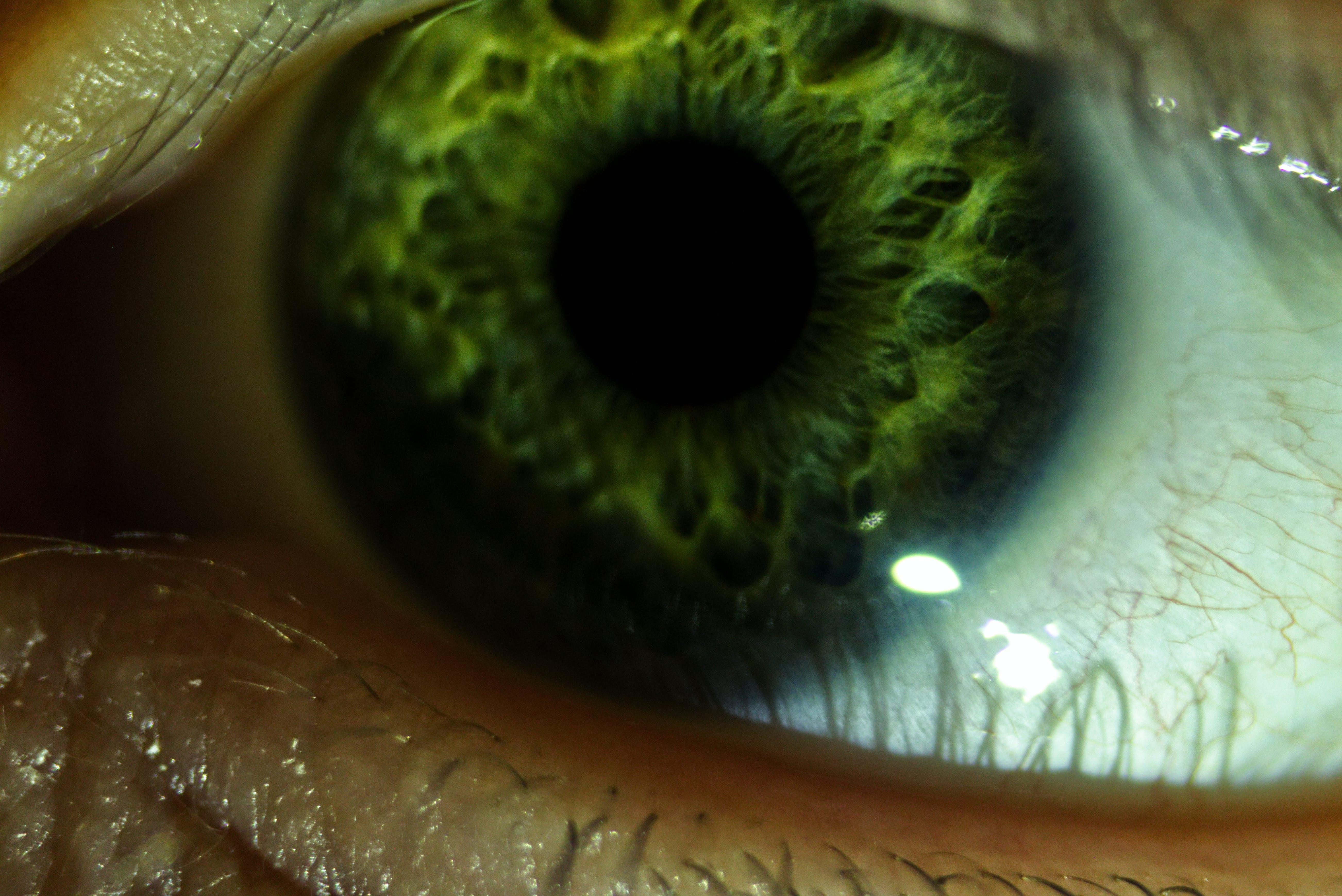 Free stock photo of backlit, beautiful, beautiful eyes, blur