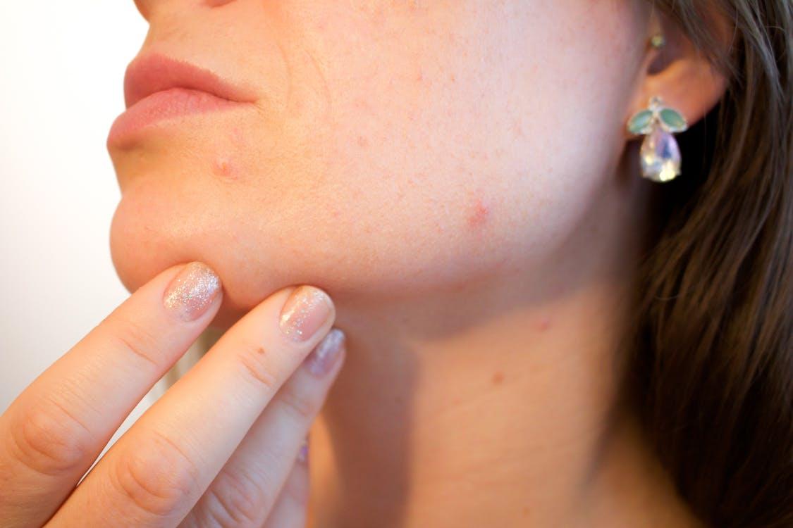 acne, adult, annoying