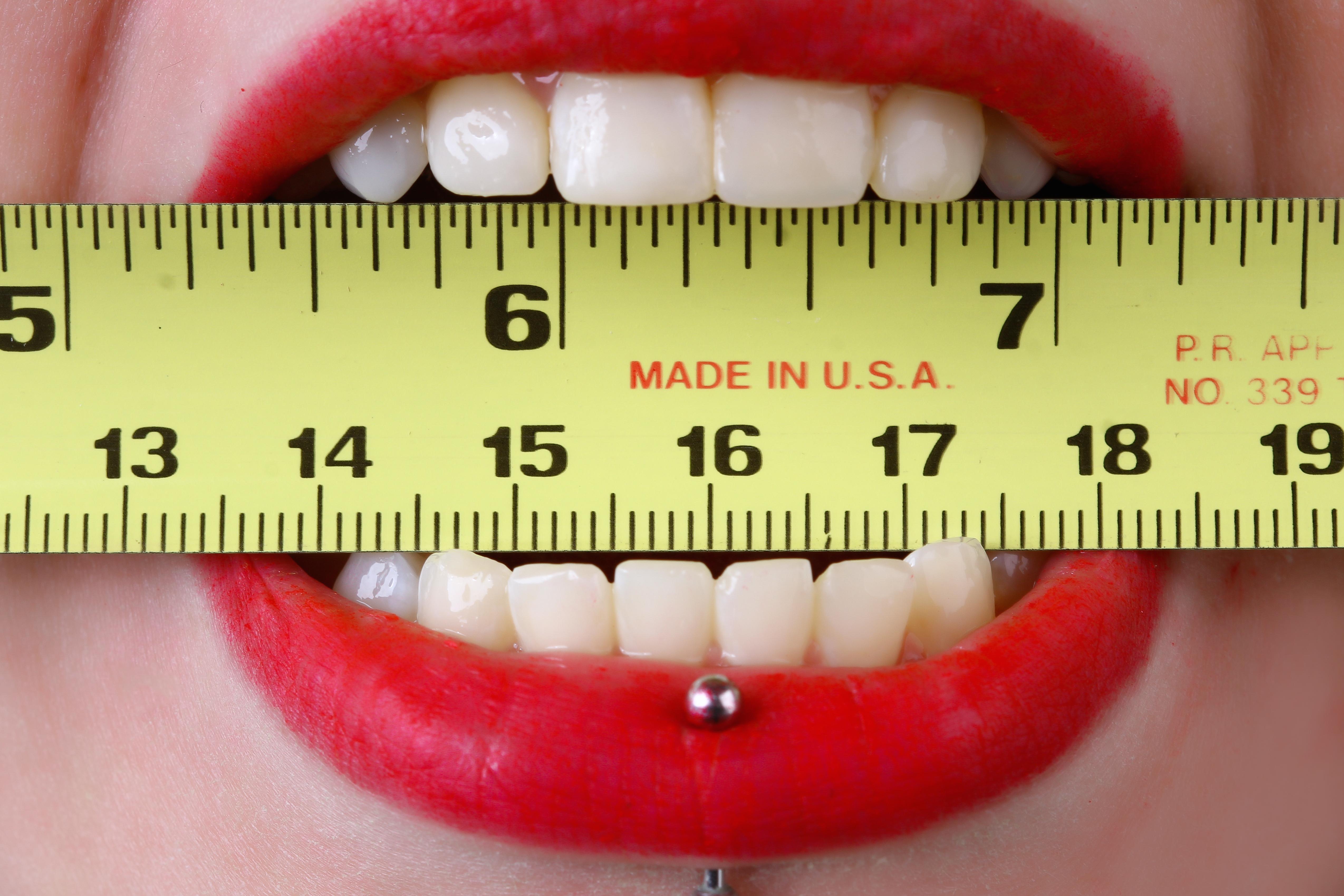 透明牙套 隱形矯正,品牌 缺點,價錢 透明牙套,費用 維持器,價錢 牙齒,透明矯正 隱形矯正,隱適美 費用,隱適美 效果,價錢 牙齒,透明牙套 牙齒
