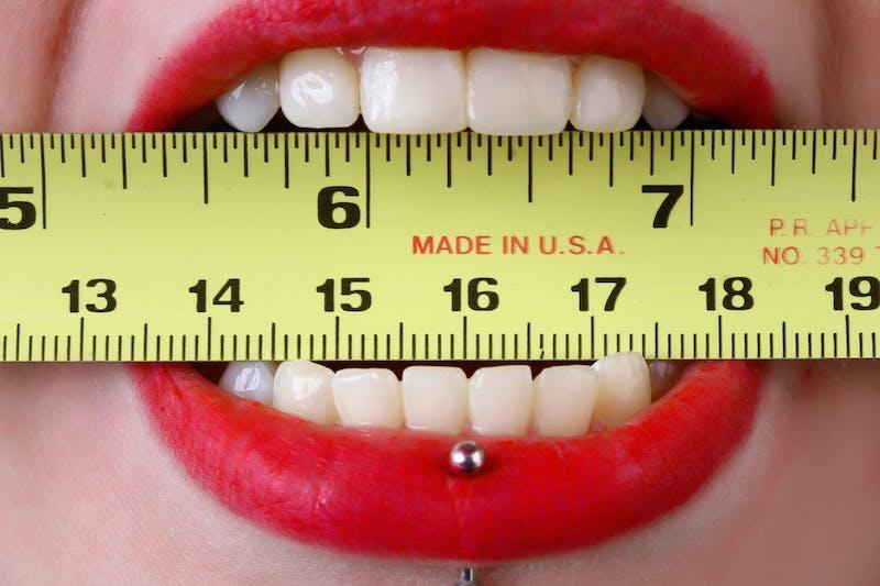 怎樣預防牙齦萎縮?拖延治癒可能會導致牙周病