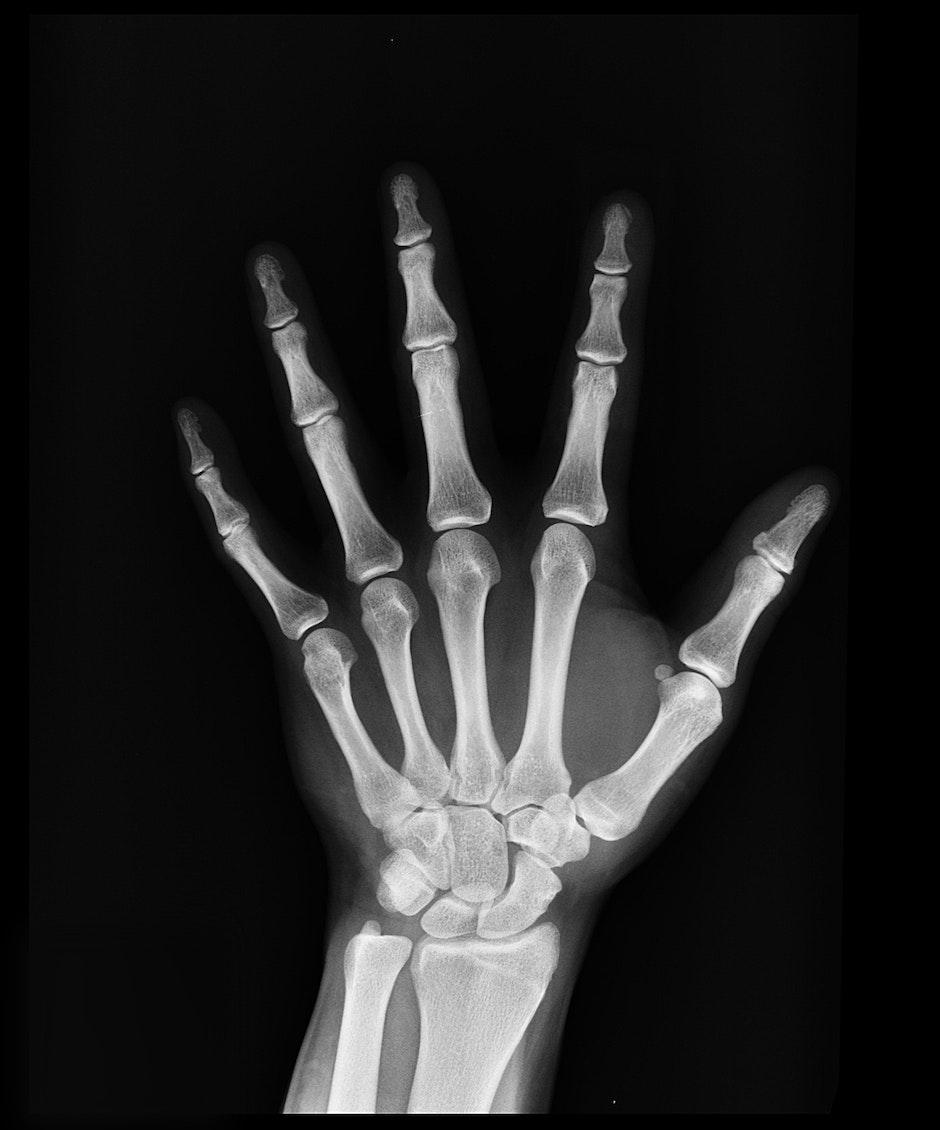 black-and-white, bones, hand