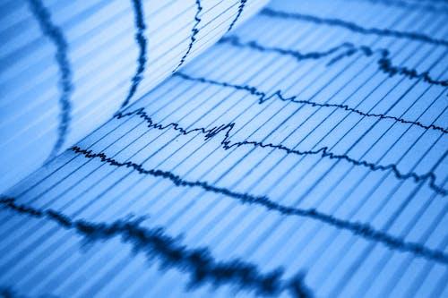 Darmowe zdjęcie z galerii z analiza, bicie, bicie serca, ciśnienie