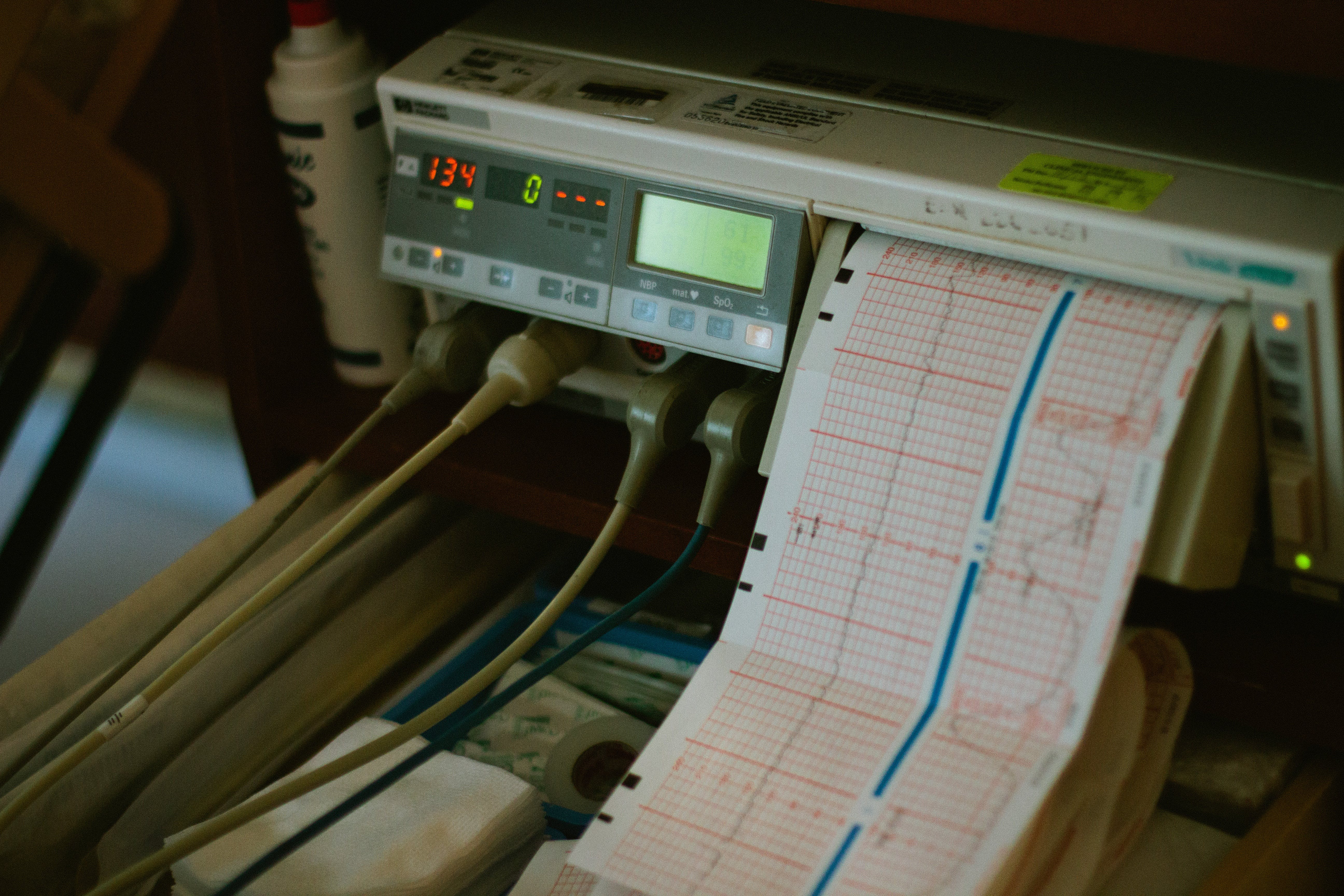 Ecg Machine Reads 134