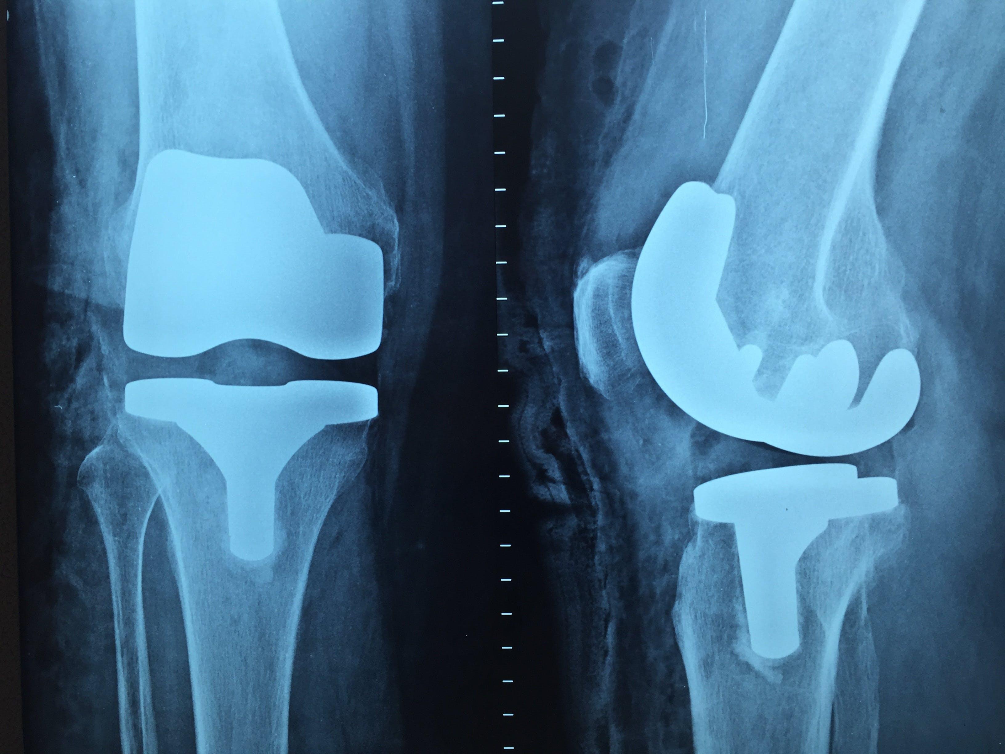 Free stock photo of doctor, knee, x-ray, orthopedics