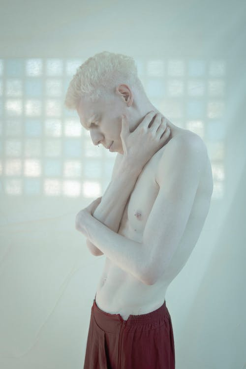 albín, chlap, chlapec