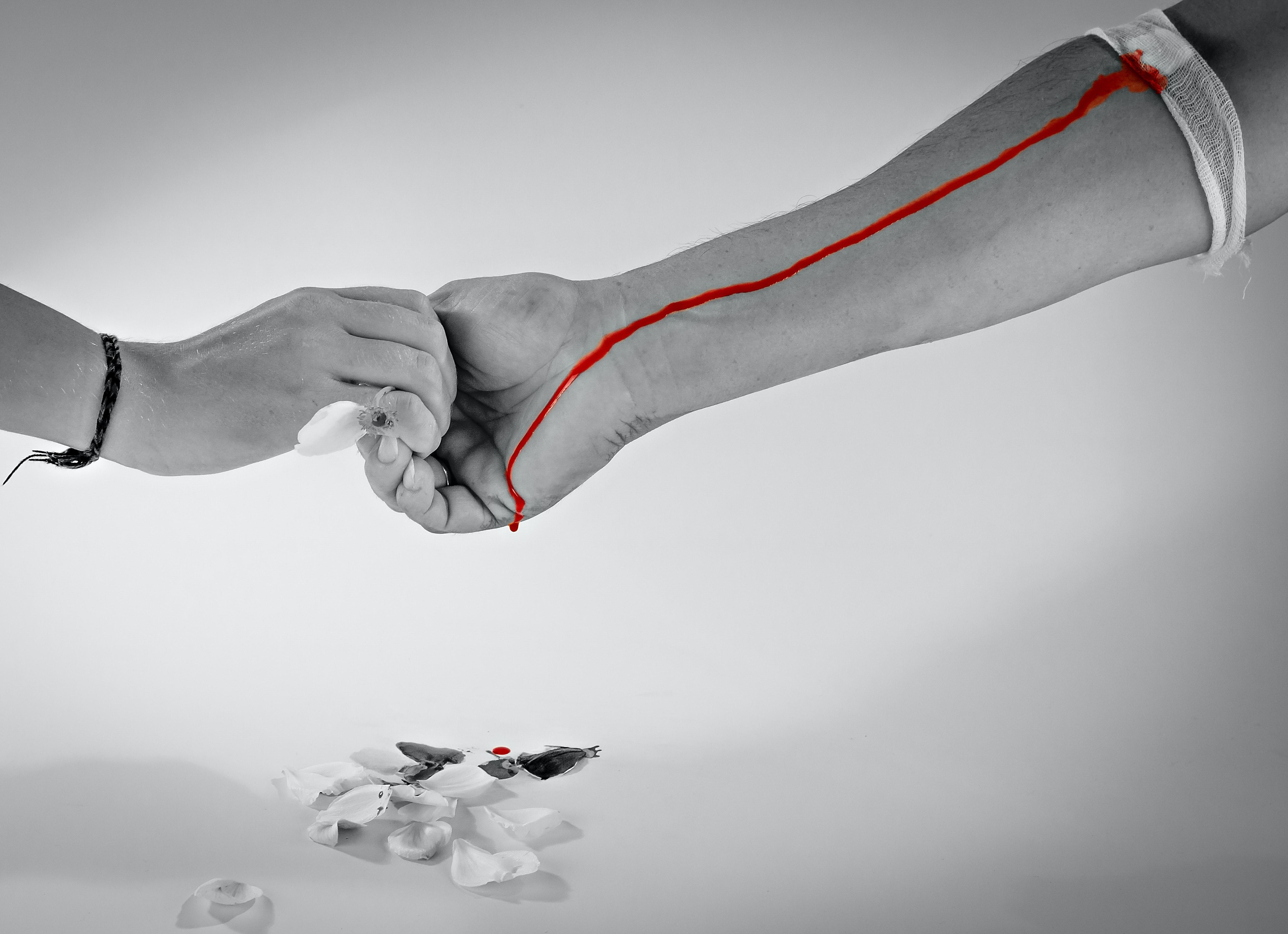dacă articulația degetului doare fractură la încheietura mâinii cu tratament de deplasare