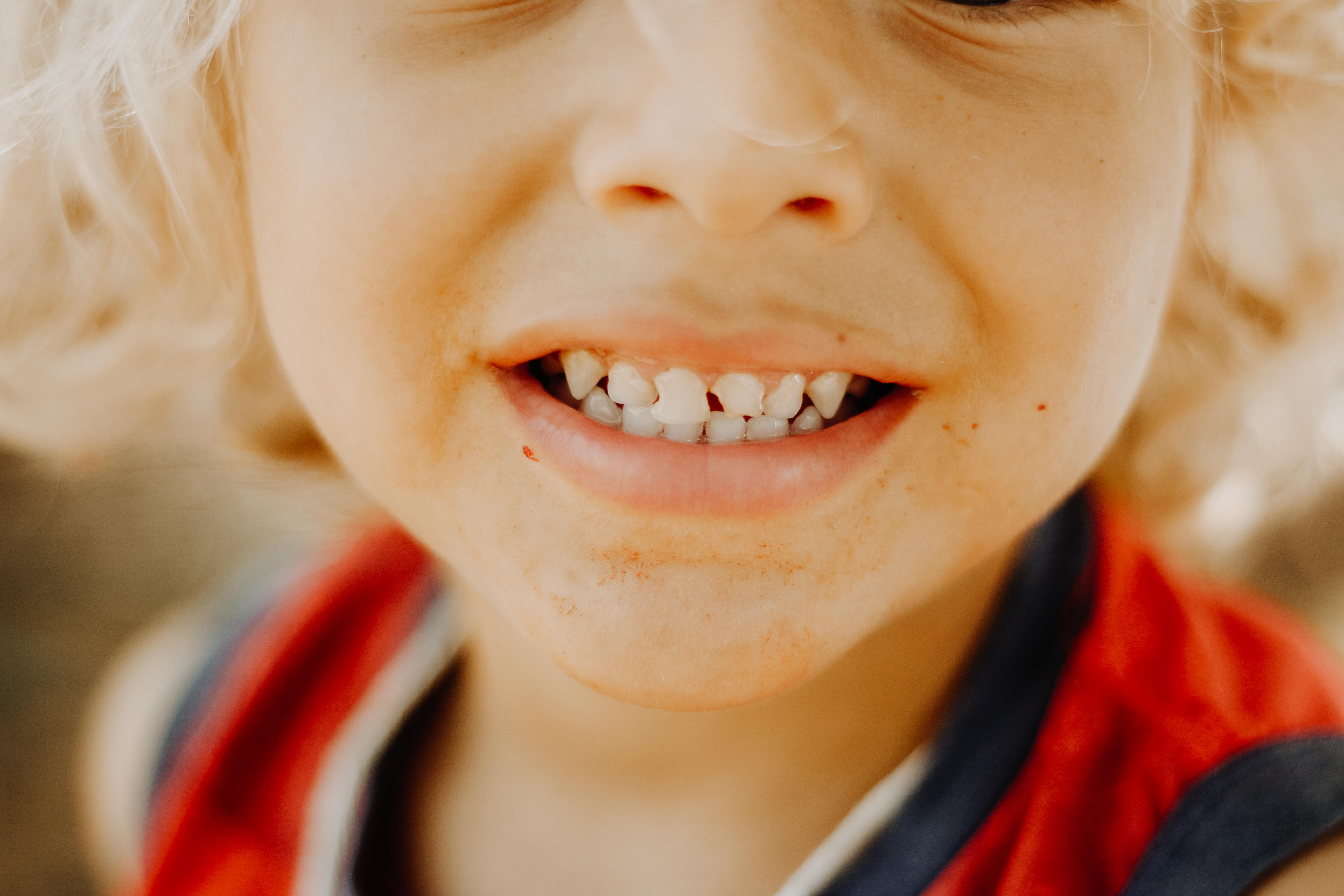 在士林遇見醫師,牙齒問題趁早治療~終於終結了我牙齒裂開的痛苦~