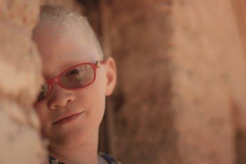 Free stock photo of albinismo, children