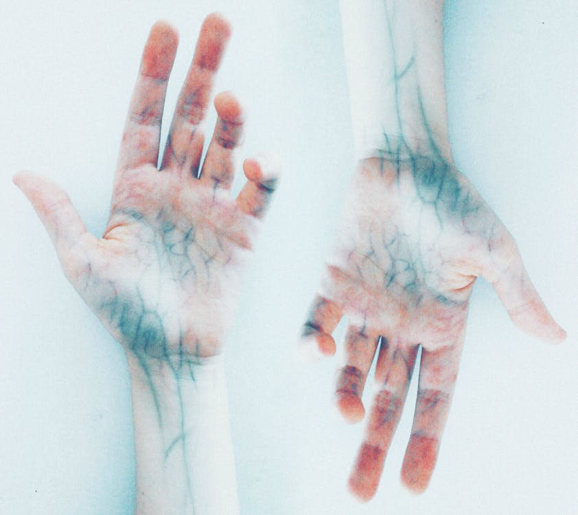 Photo of Hands with blue veins