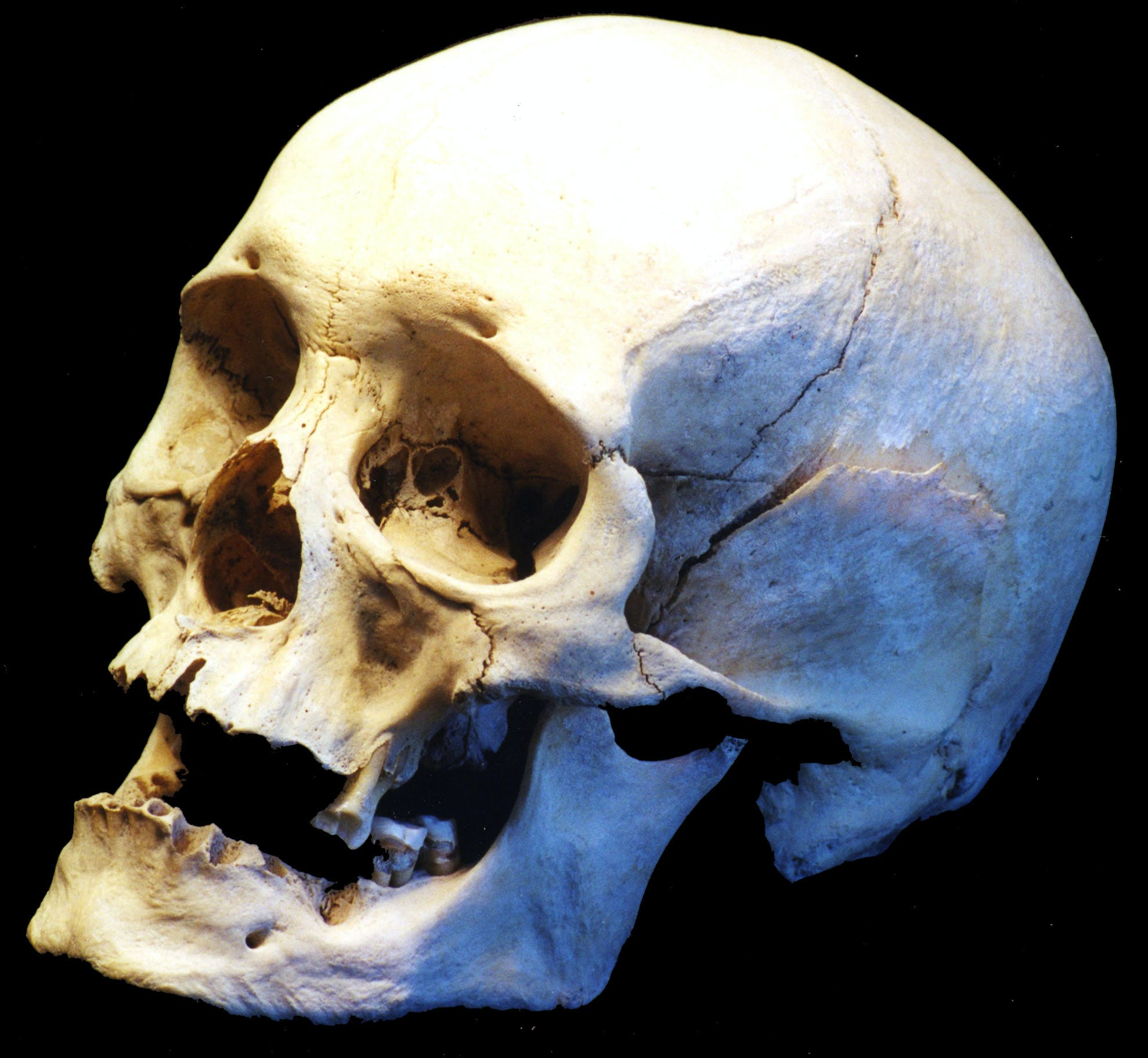 Free stock photo of Bone, dead, death, halloween