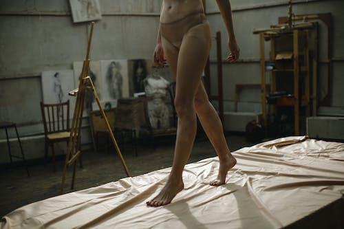 Vrouw Met Vitiligo In Haar Benen