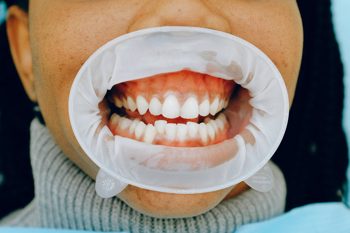 Person With Dental Cheek Retractor
