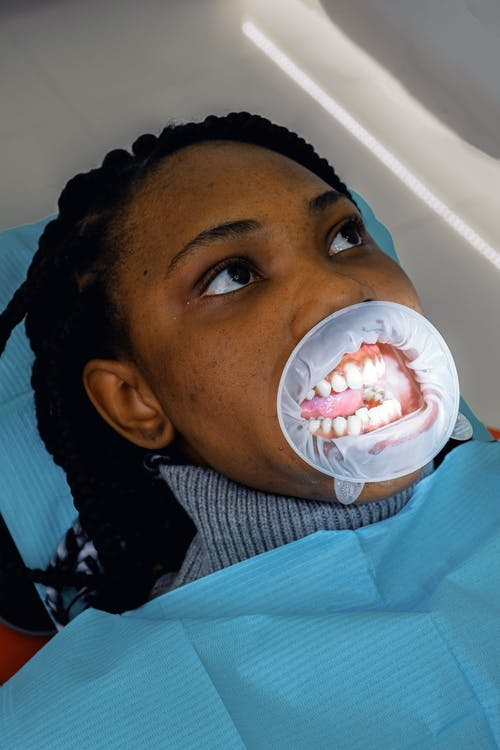 Young female ethnic patient with mouth expander during dental procedure in clinic