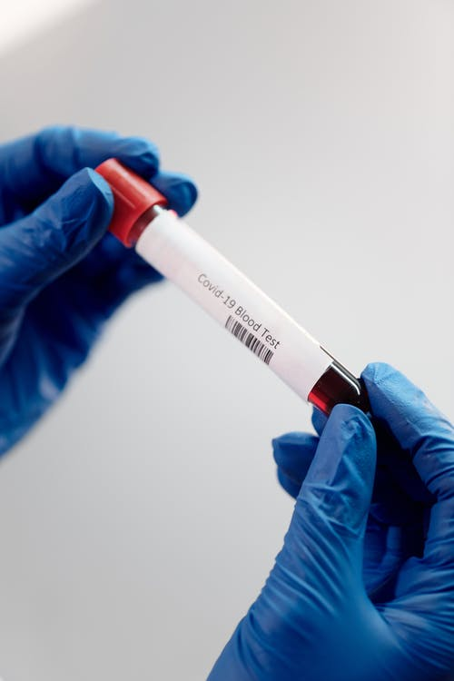 Free stock photo of blood, blood test, coronavirus
