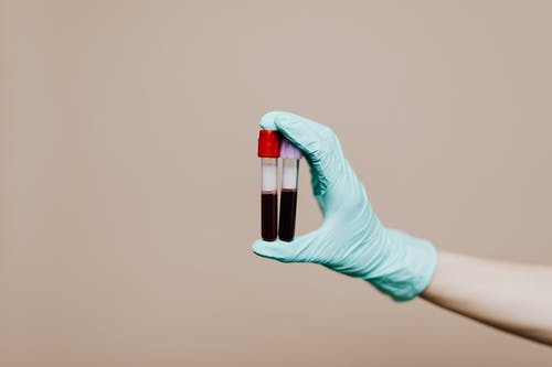 Photo Of Person Holding Test Tubes