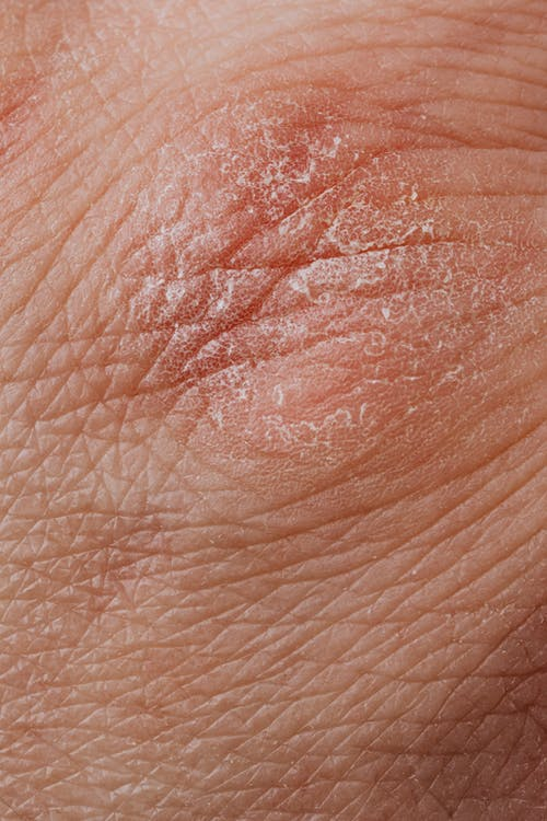 Close-up View Of Human Dry Skin