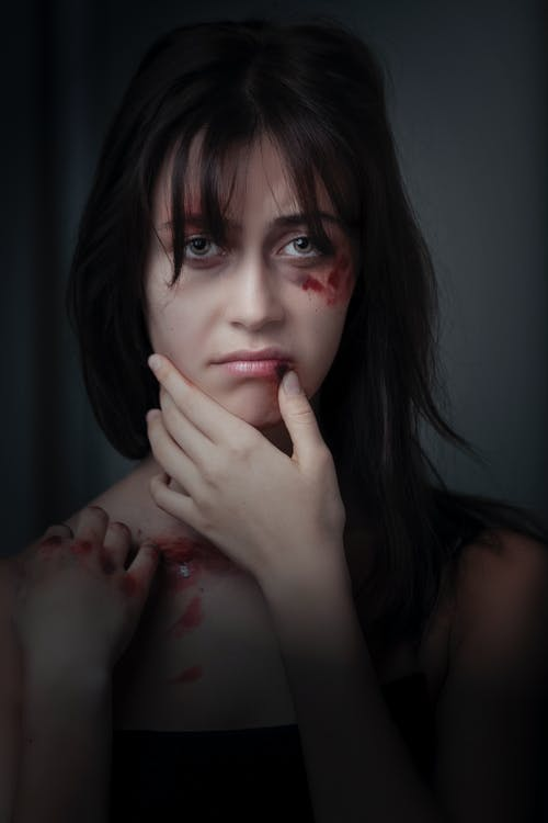 Woman With Red Bruise