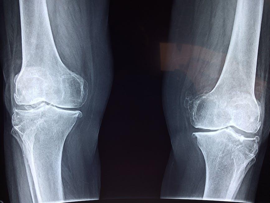 Manfaat Pisang Untuk Kesehatan Tulang