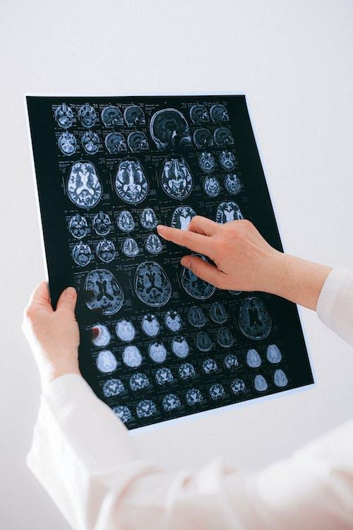 간호사, 건강, 구조, 기술의 무료 스톡 사진