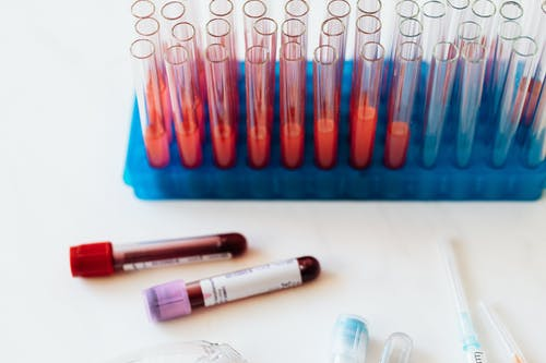 From above of plastic stand with test tubes of blood placed on white surface near vials of blood and syringe