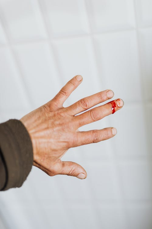 Crop person with bleeding wound on finger