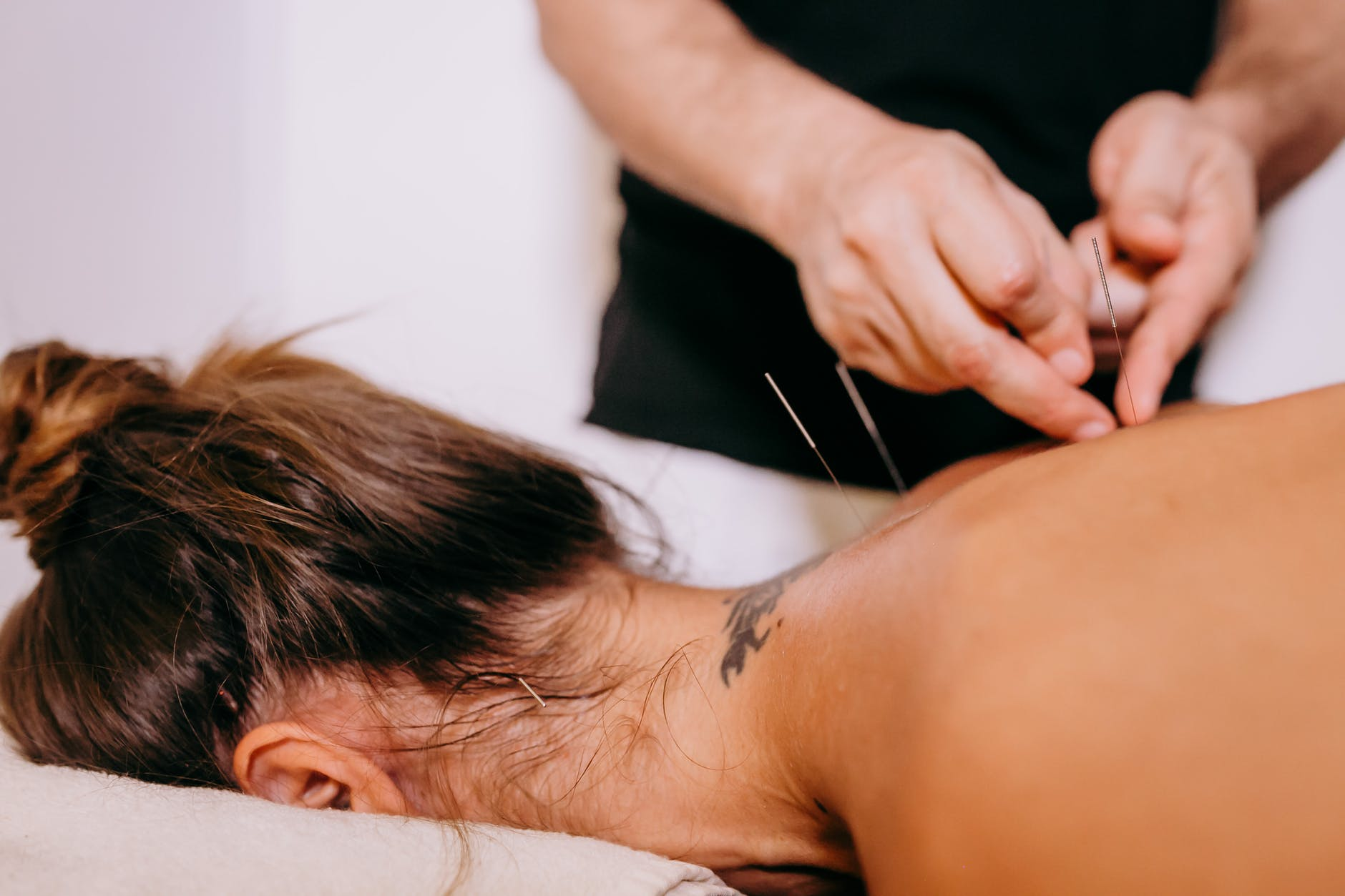 Accupuncture to improve your immune system