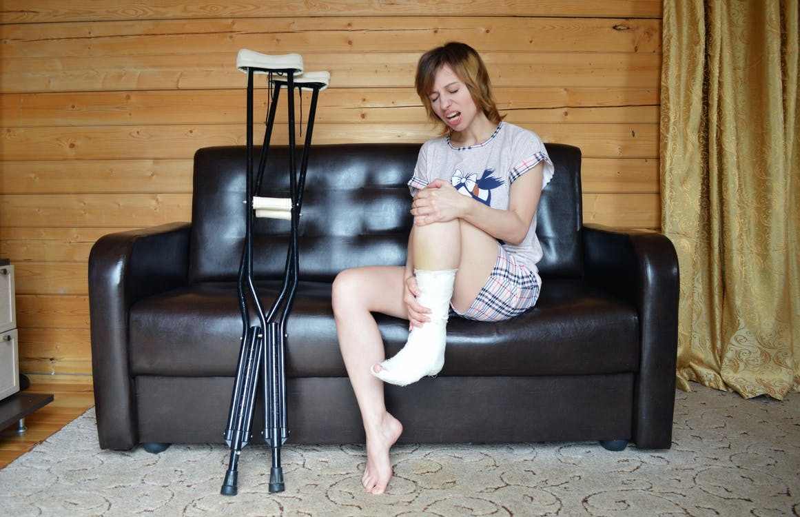 Young woman holding broken leg in cast