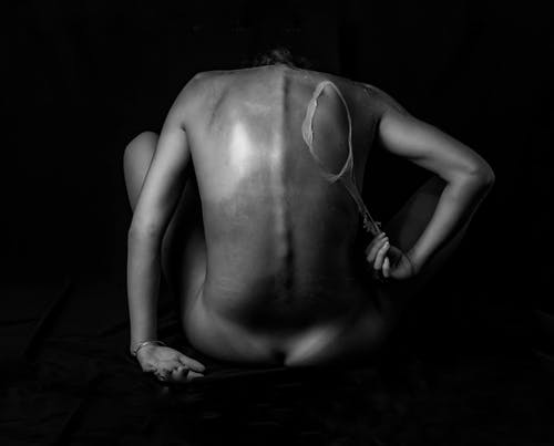 Naked woman with burnt skin in black studio