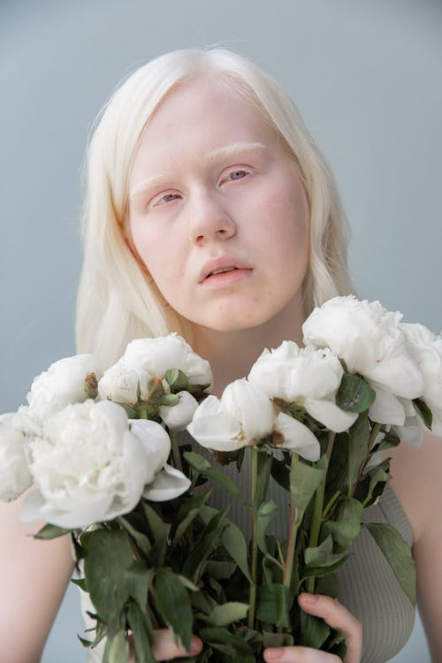 Unhappy albino woman with bouquet of white flowers