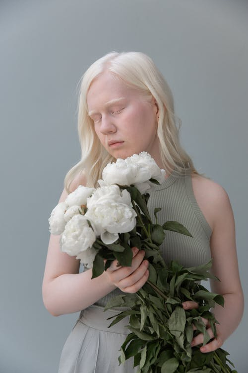 Albino woman with bouquet of flowers
