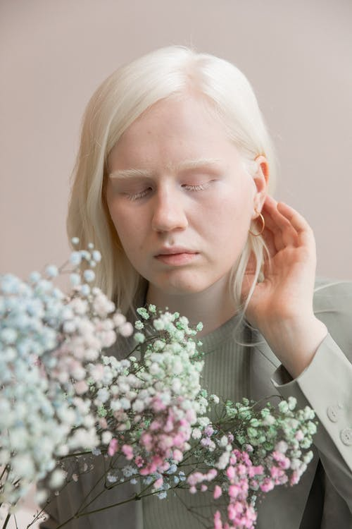 Mulher Albina Atraente Com Buquê De Flores