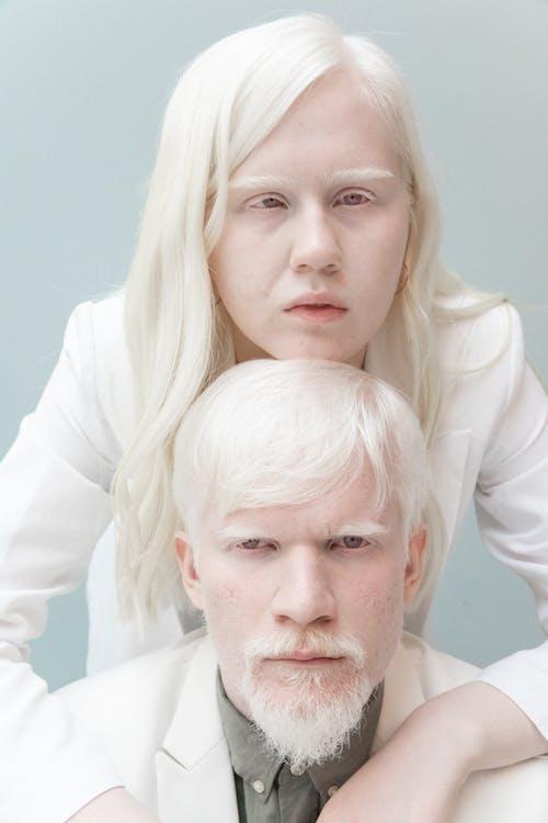 Expressive albino couple embracing in studio
