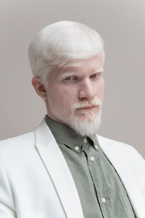 Confident albino man in trendy suit