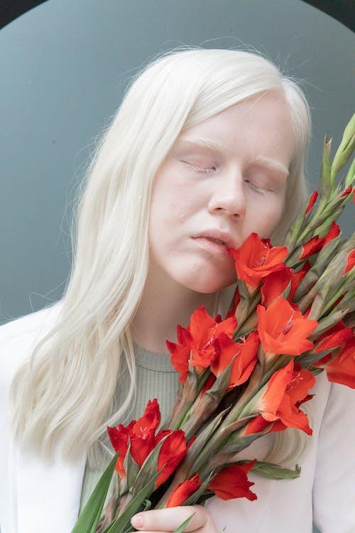 Mulher Albina Com Buquê De Flores Vermelhas