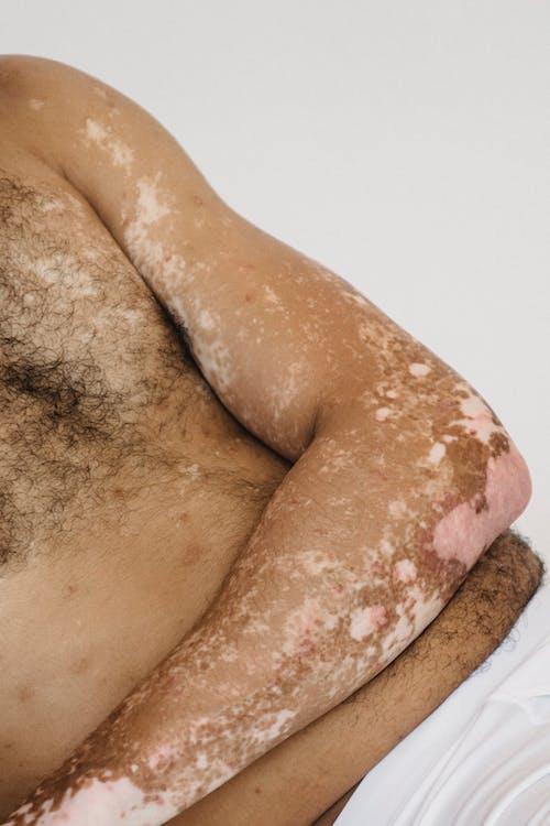 Przytnij Nierozpoznawalnego Mężczyznę Bez Koszuli Ze Skórą Bielactwa W Studio