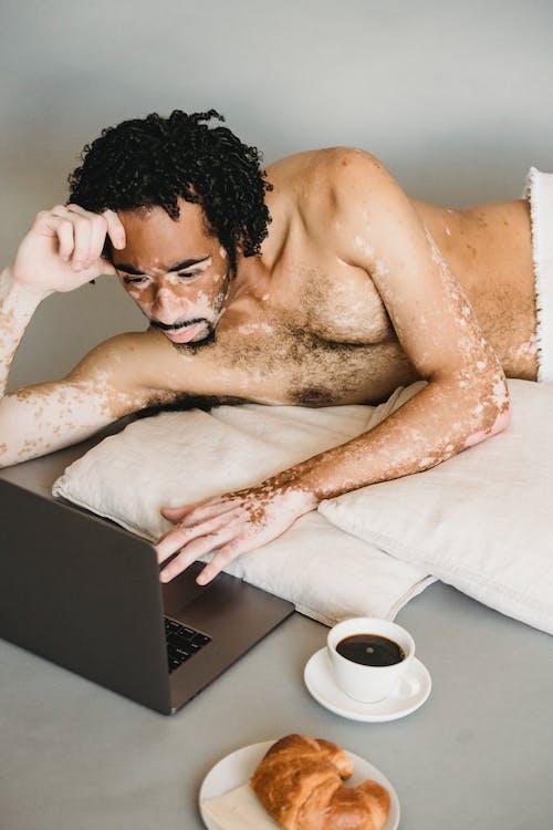 Shirtless black man with vitiligo surfing laptop on floor