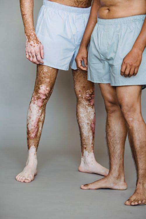 Crop unrecognizable shirtless man in boxer shorts living with vitiligo skin standing near man in underwear in light studio
