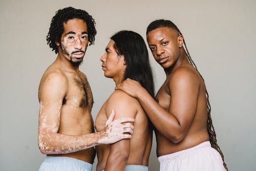 Side view unemotional American Indian man in underpants standing between shirtless African American male with vitiligo and black bisexual male with naked torso and long braids