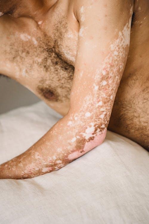 Snijd Een Anonieme Man Met Vitiligo Huid Bij Die Op Knusse Kussens Ligt