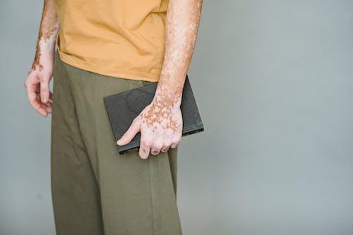 Man Met Vitiligo Permanent Met Notebook
