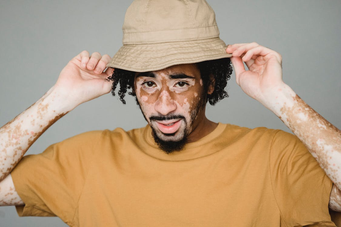Young African American male with vitiligo patches putting on headgear while representing unique appearance in studio
