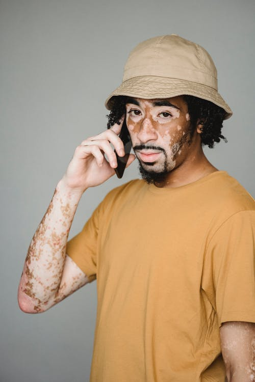Confident African American male with vitiligo skin standing in studio and having phone call on smartphone