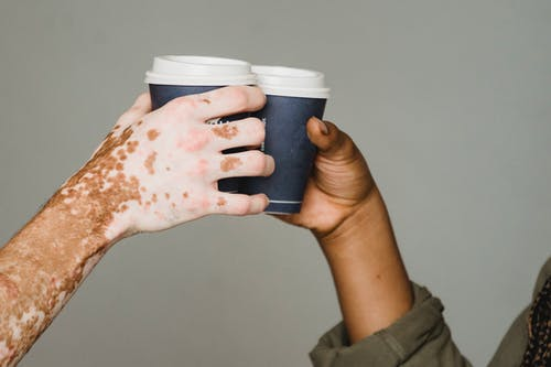 Unrecognizable man with vitiligo skin and anonymous African American male clinking with hot drinks on gray background during coffee break