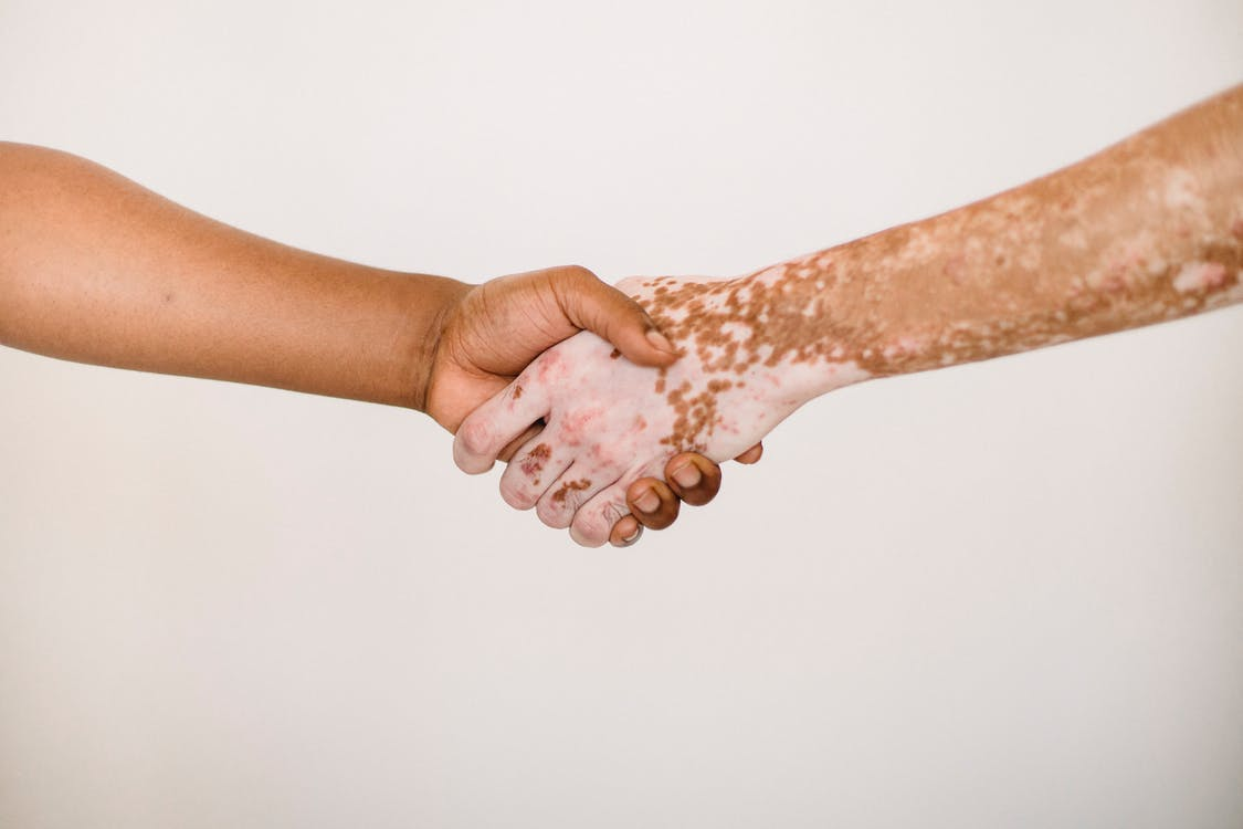 Crop anonymous man shaking hand of male friend with vitiligo skin against white background
