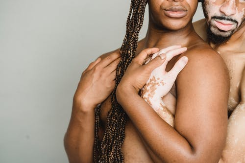 Crop shirtless man with vitiligo skin standing behind and hugging black shirtless boyfriend with long hair against gray wall during photo session in studio