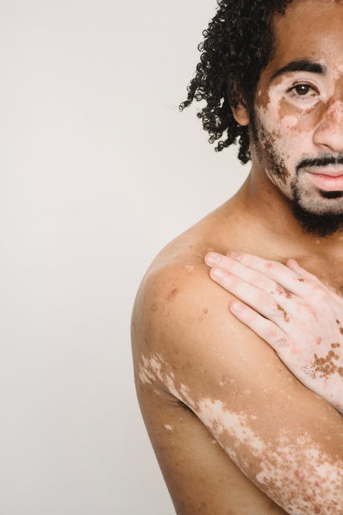 Crop unemotional African American male living with psoriasis holding hands on bare chest while standing against white wall and looking at camera calmly